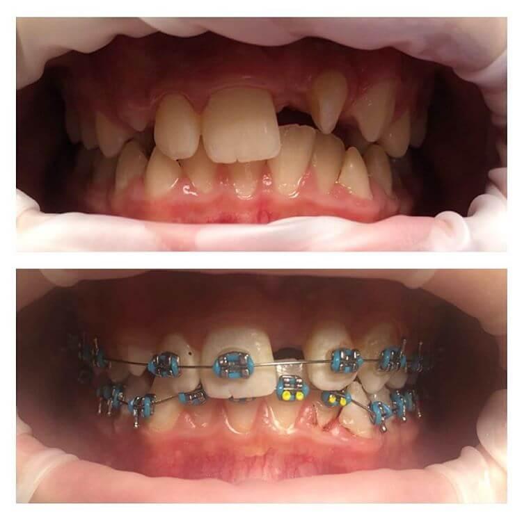 установка брекетов в стоматологической клинике