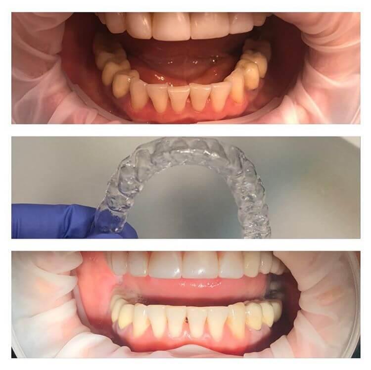 капы для выравнивания зубов фото