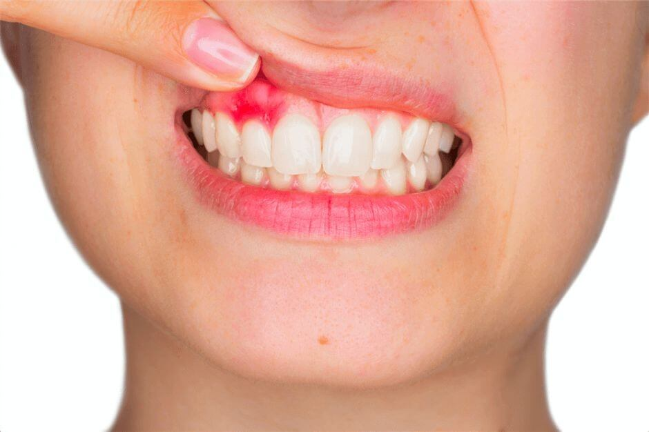 удаление кисты зуба в стоматологической клинике фото
