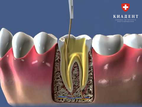 лечение корня зуба фото