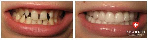 установка виниров на зубы в одессе фото
