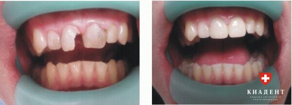 наращивание переднего зуба фото