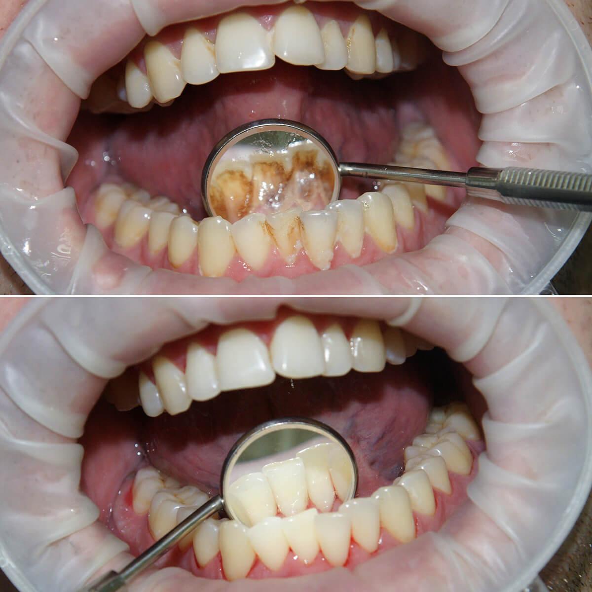 профессиональная чистка зубного камня в Одессе