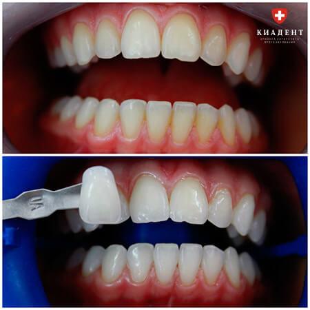 лазерное отбеливание зубов в одессе фото