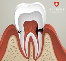 лечение корневого канала зуба фото