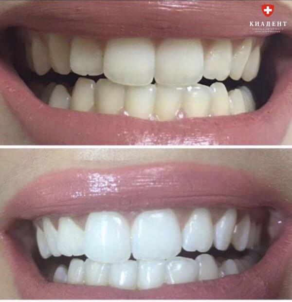 отбеливание зубов лазером одесса фото